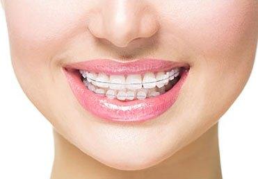 Retainers, Dentist Spokane Valley