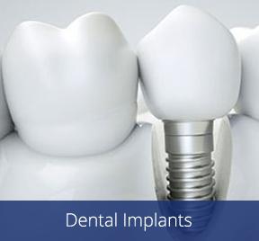 Dental implants image for Dr. Chet Hymas in Spokane Valley, Washington.