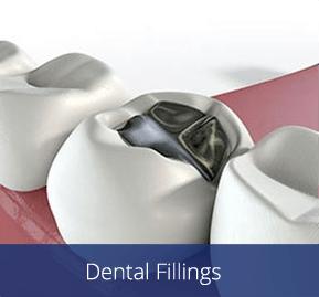 Dental Filling image for Dr. Chet Hymas in Spokane Valley, Washington.