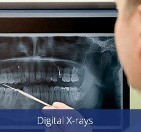 Digital X-rays by Dr. Chet Hymas, dentist in Spokane Valley, Washington